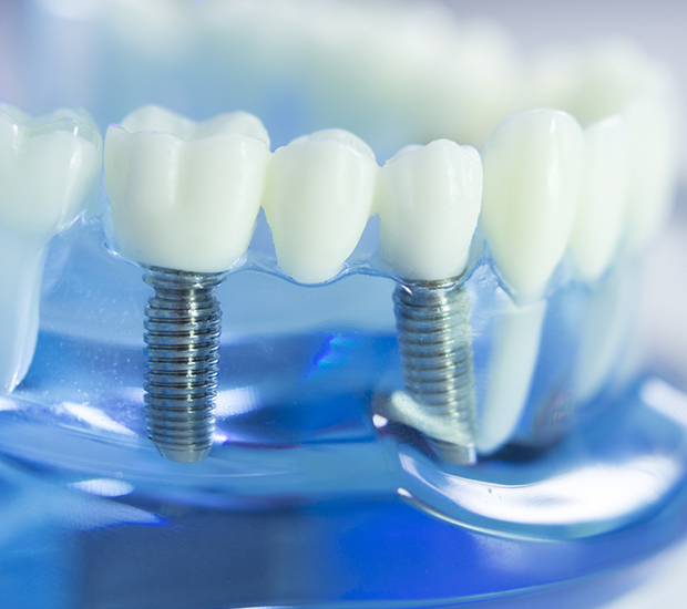 West Palm Beach Dental Implants